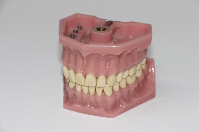 implant czy proteza